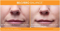 BELOTERO Balance woman - before and after dermal filler