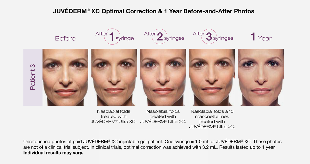 Juvederm before and after photos after 1 treatment, 2 treatments, 3 treatments and a full year