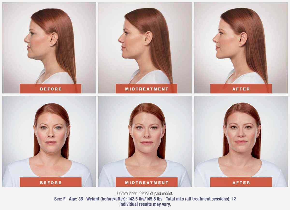 Kybella-Before-and-After-results - side and front shots before, during, and after treatment
