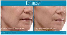 RADIESSE® Treatment of front smile lines - middle aged woman