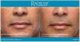 RADIESSE® Treatment of front smile lines - man