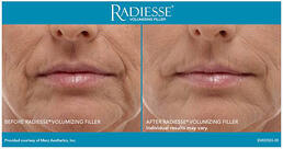 RADIESSE® Treatment of front smile lines - older woman