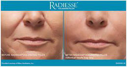 RADIESSE® Treatment of front smile lines - woman angled