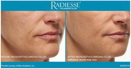 RADIESSE® Treatment of front smile lines - woman