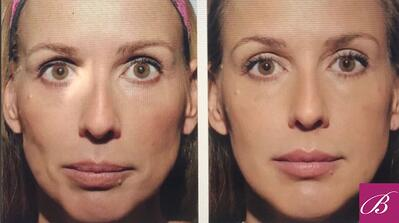 woman's face Before and After Sculptra