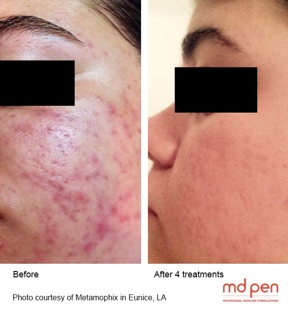 MD Pen - Before and After Acne