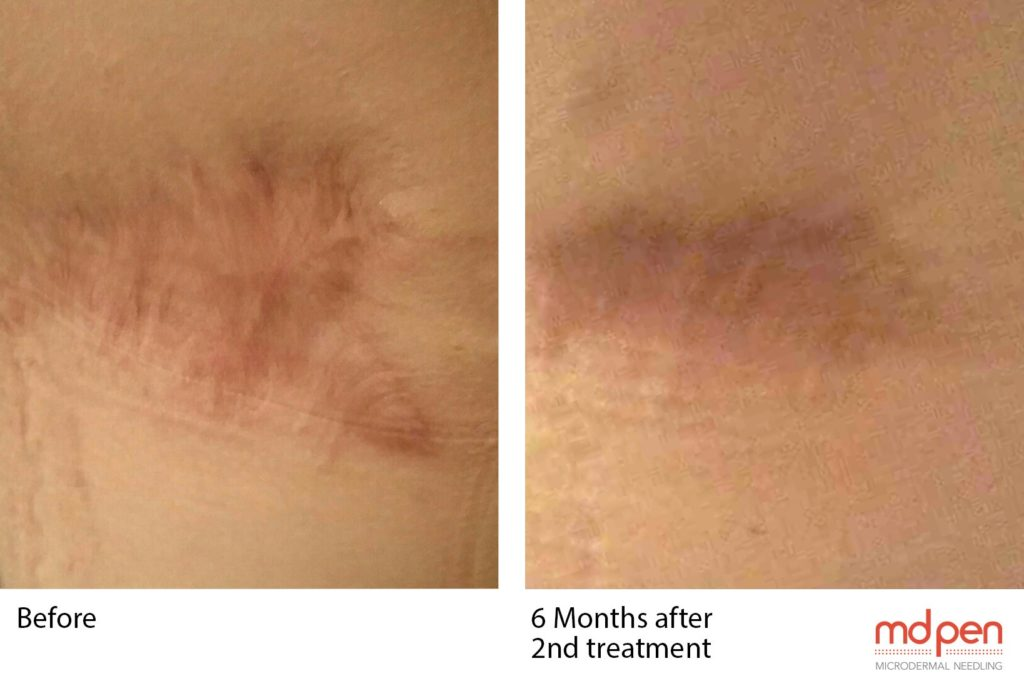 MD Pen - Before and After Tummy