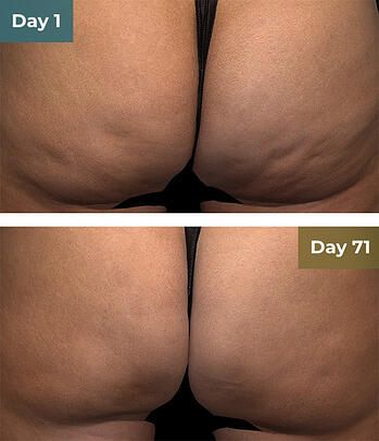 QWO Injection before and after image of woman's buttocks