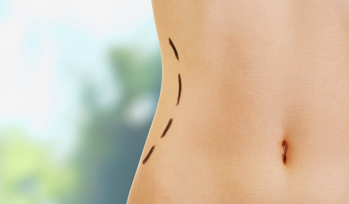 Womans Waistline showing body contouring predicted results