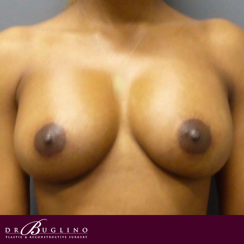 Patient 1 - Breast Augmentation - After