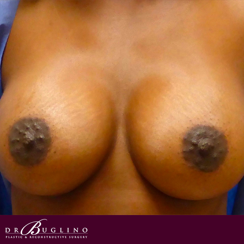 Patient 2 - Breast Augmentation - After