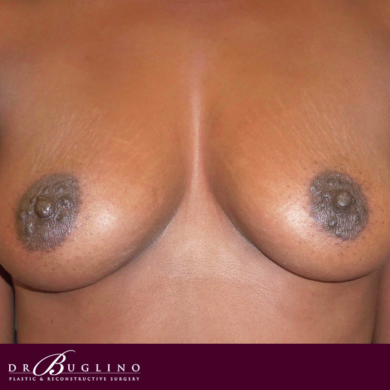 Patient 2 - Breast Augmentation - Before