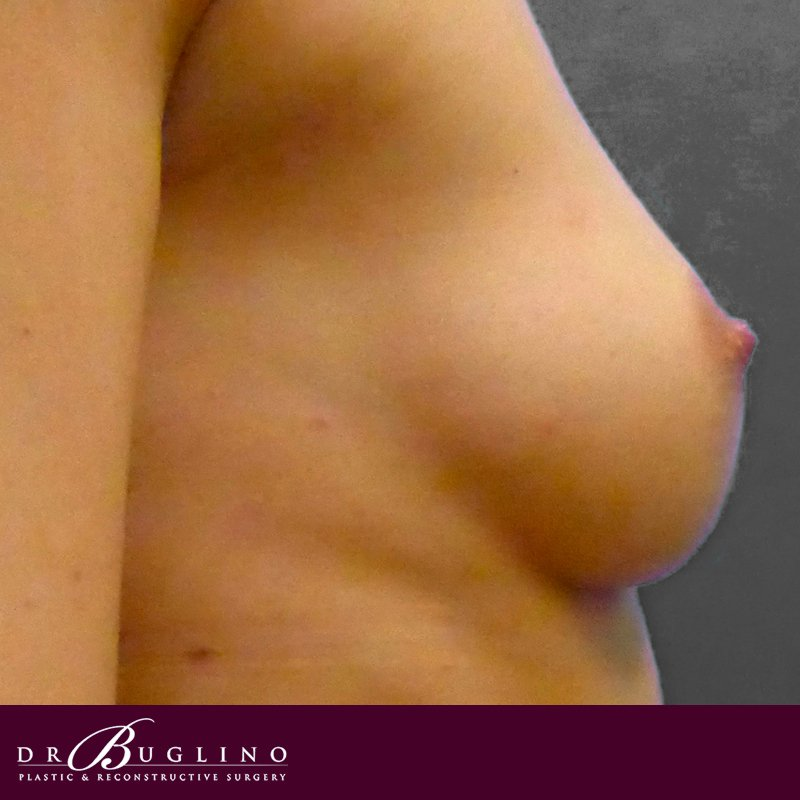 Patient 3 - Breast Augmentation - Before