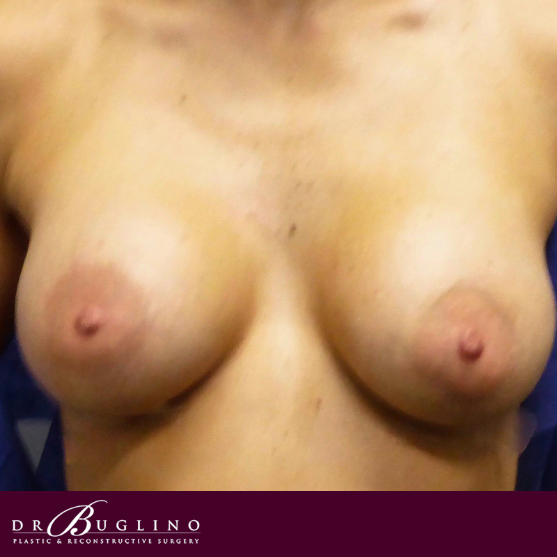 Patient 3 - Breast Augmentation - After