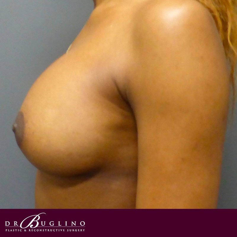 Patient 4 - Breast Augmentation - After