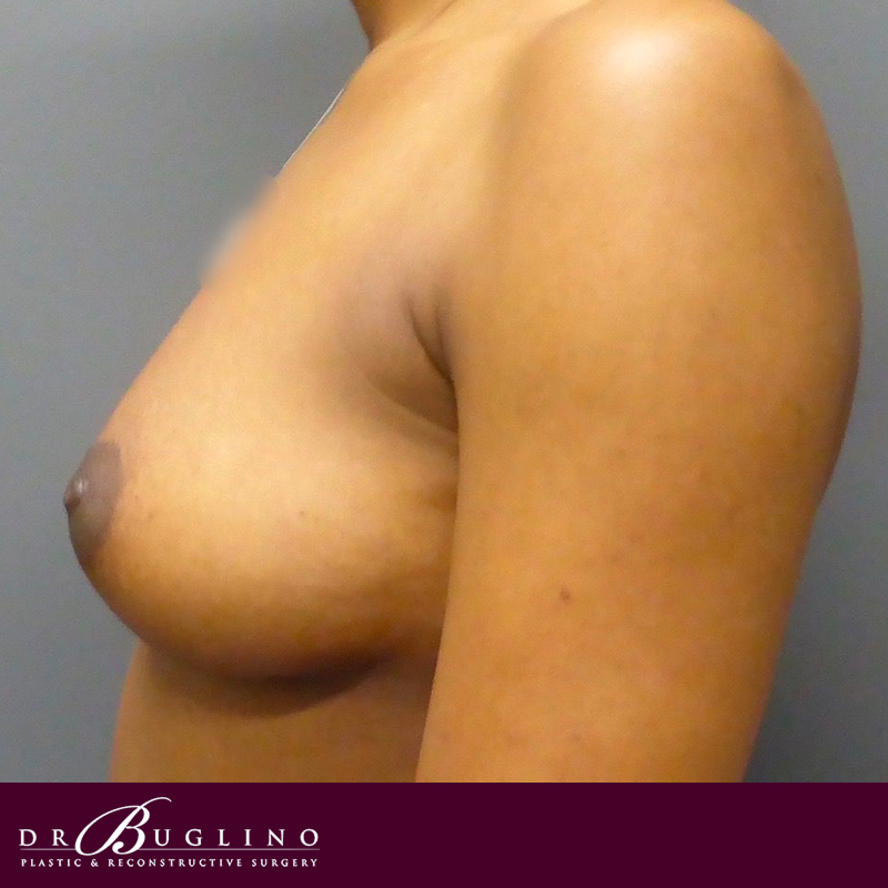 Patient 4 - Breast Augmentation - Before
