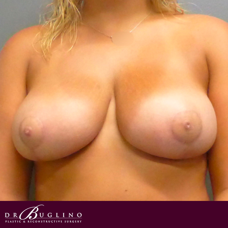 Patient 2 - Breast Reduction - After