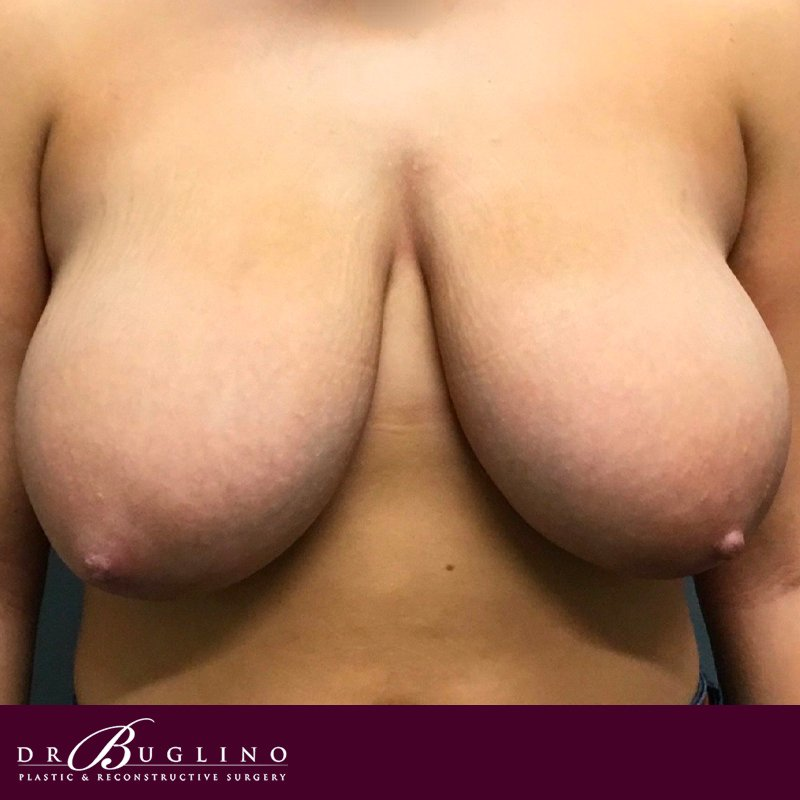 Patient 2 - Breast Reduction - Before