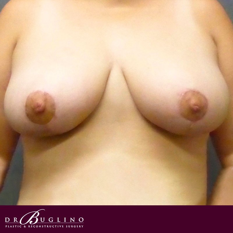 Patient 3 - Breast Reduction - After