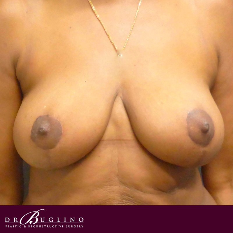 Patient 4 - Breast Reduction - After