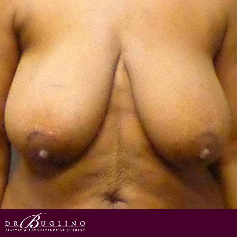 Patient 4 - Breast Reduction - Before