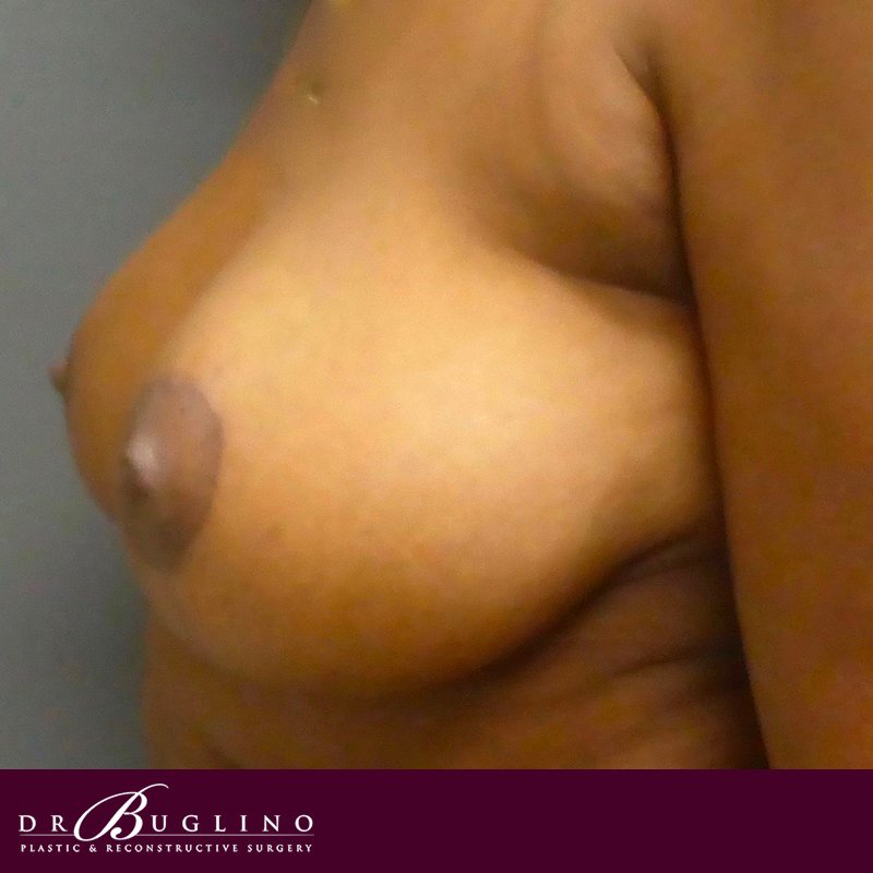 Patient 1 - Breast Lift - After