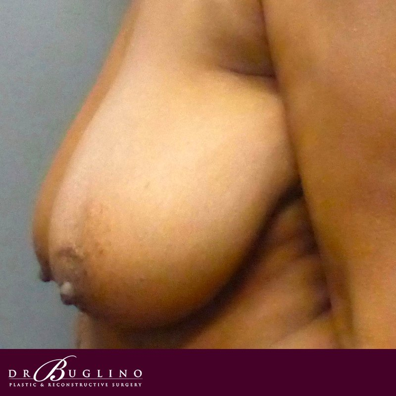 Patient 5 - Breast Reduction - Before