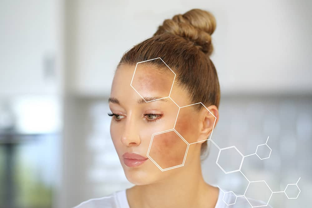 Caucasian woman looking sadly with small focus points showing acne on face