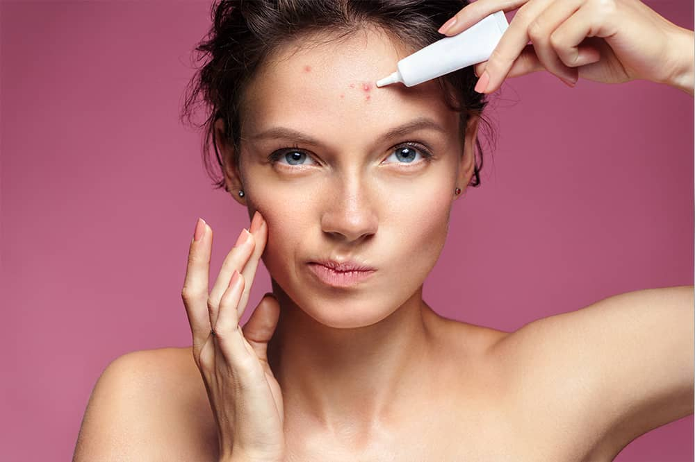 Caucasian woman using acne treatment on forehead