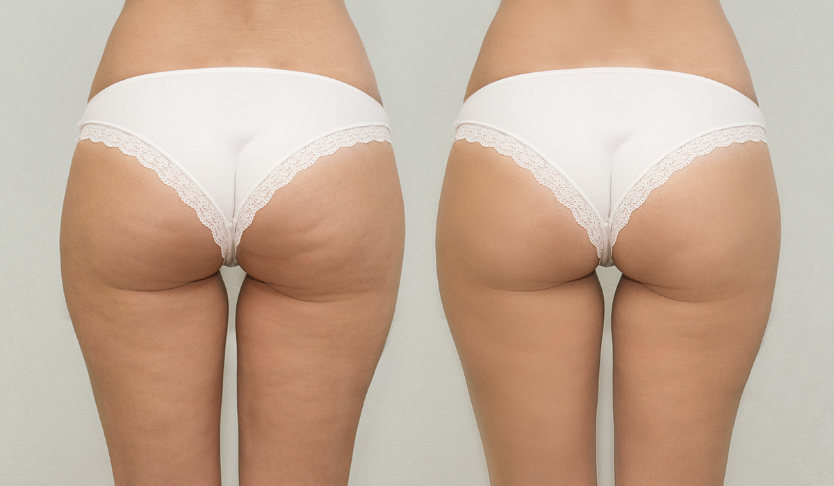 FDA-Approved Cellulite Injectable QWO Coming Soon to Buglino Plastic Surgery