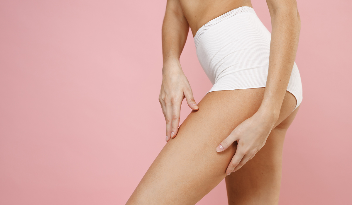 Does a Thigh Lift Get Rid of Cellulite?