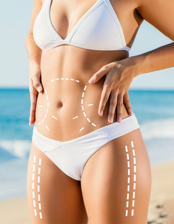 woman standing on the beach in a white bathing suit touching her body with liposculpture lines drawn on her stomach and legs